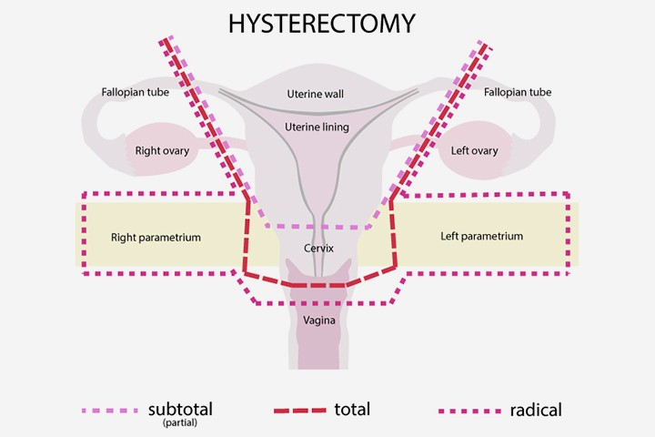Robotic Assisted Hysterectomy
