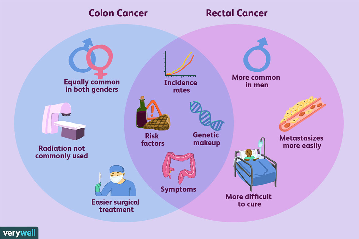 Colorectal Cancer Rates Rising In Young Adults