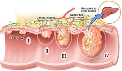 Colorectal Cancer In Malaysia